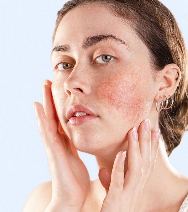 Trattamento laser per rimuovere le macchie sulla pelle