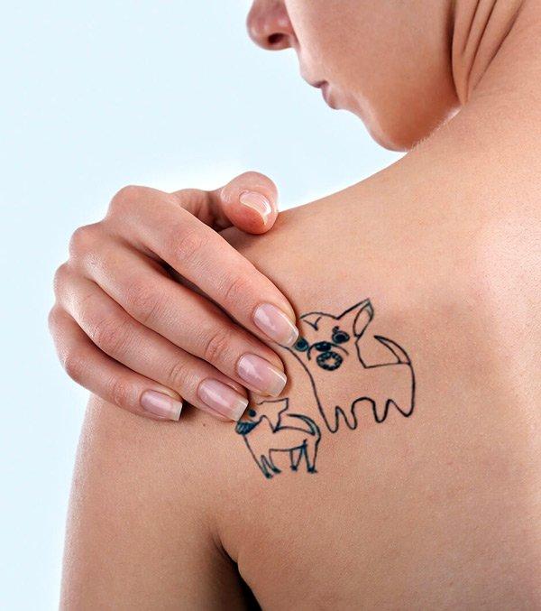 Trattamento rimozione del tatuaggio con il laser